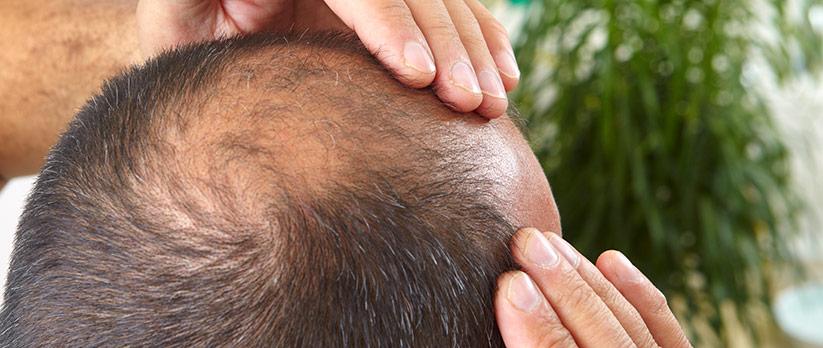 Hårtransplantation vid manligt håravfall